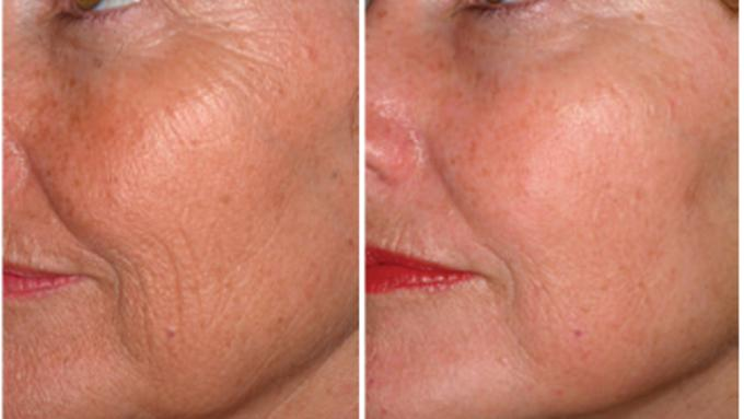 Palomar pic before after skin resurfacing